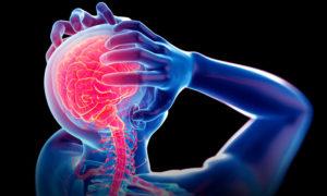 Migraine-2-CBD-HempWorx-MyDailyChoice-Jean-Marc-Fraiche