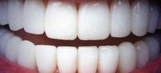 Recette-naturelle-pour-des-dents-blanches-Aromatherapie-2-Jean-Marc-Fraiche-VousEtesUnique