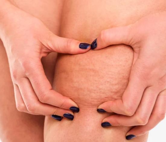 cellulite-FatDetox-HB-Naturals-Jean-Marc-Fraiche-VousEtesUnique